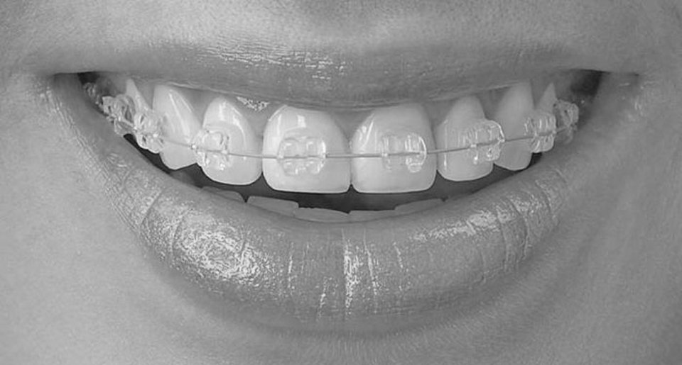 best-orthodontics-braces-nyc-01
