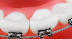 broken braces
